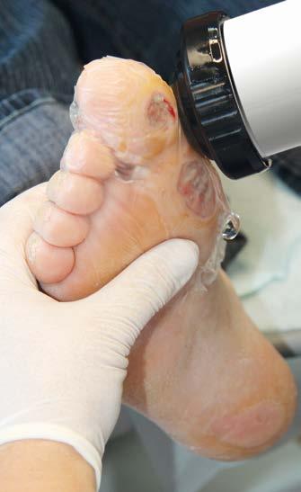 Behandlung einer nicht heilenden Wunde mit dem C Actor Sepia Handstück